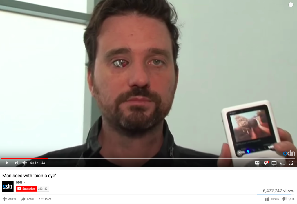 6.4 million views